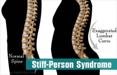 stiff-person-syndrome